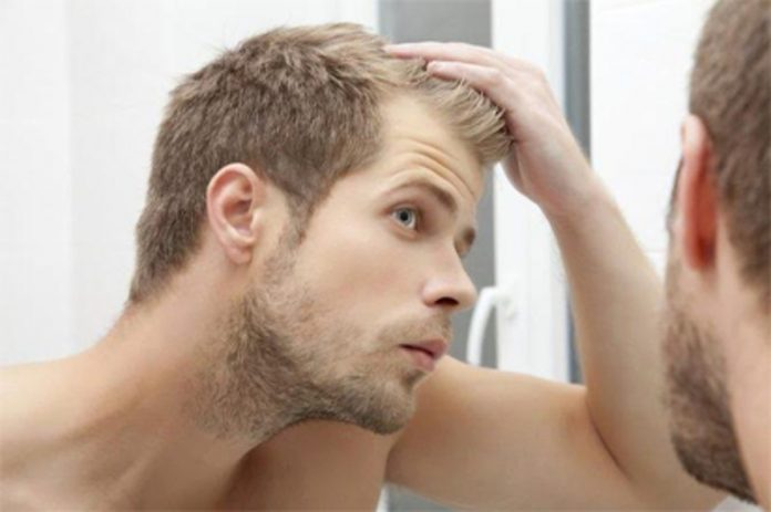 4 Ways to Manage Your Receding Hairline
