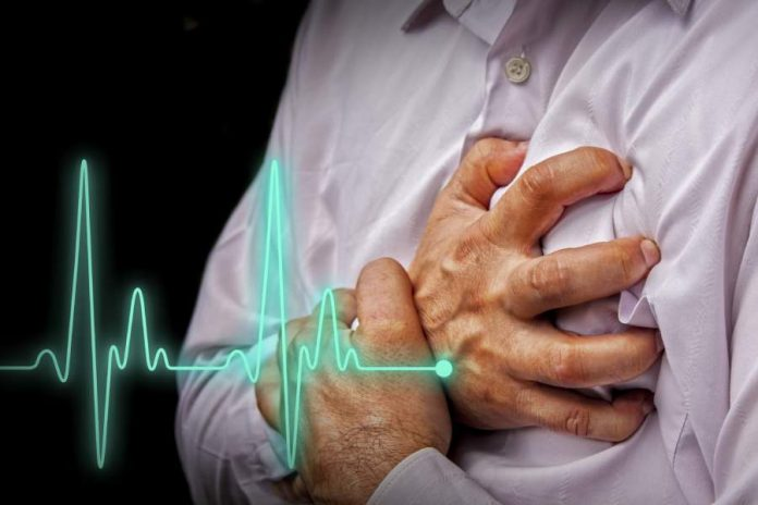 Signs Of Cardiac Arrest