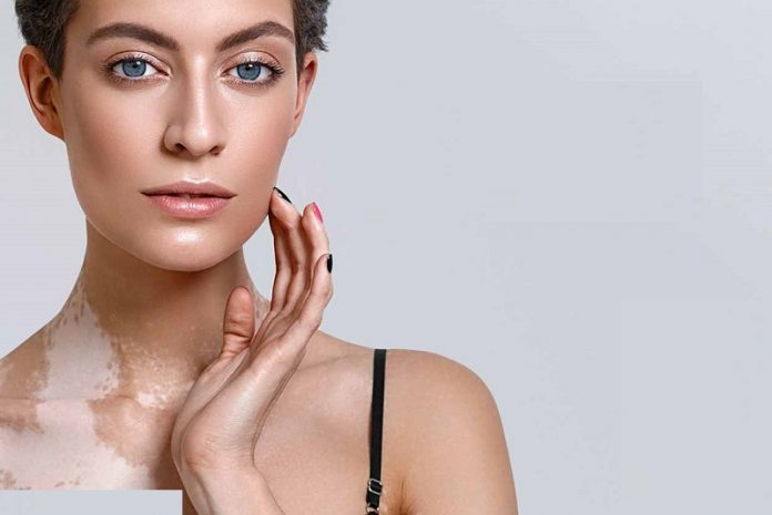 The Best Skin Care Products & How To Use Them For Vitiligo