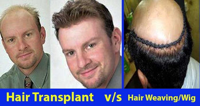 Hair Weaving Vs. Hair Transplant Which One Is Better